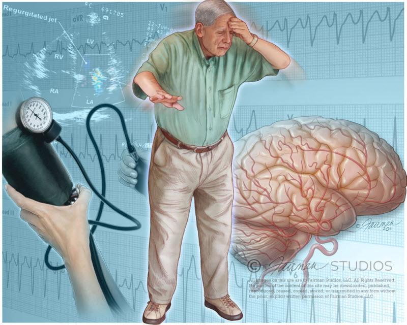 سنکوپ به چه معنی است؟ چه علت هایی دارد و راه های تشخیص و درمان کدامند؟